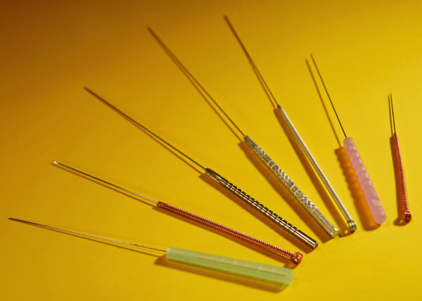 Acupuncture used for allergies may have additional benefits over medication.