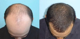 All You Need to Know About Hair Transplantation
